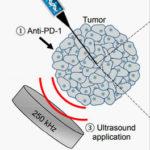 В Стэнфорде научились лечить особо опасный рак ультразвуком